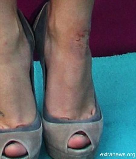 Псориаз, симптомы которого определяют его склонность к поражению околосуставных тканей, проявляется в форме шелушащихся