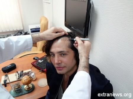 Стас михайлов нарастил волосы